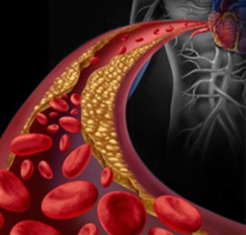 Colesterolo e ipercolesterolemia